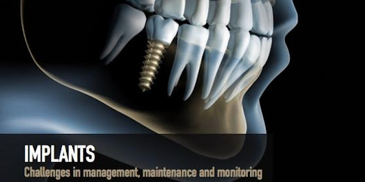 Implants: Challenges in Management, maintenance and Monitoring