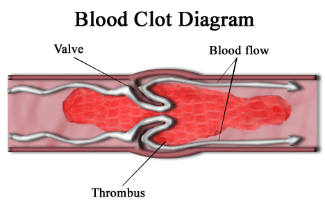 Blood_clot_diagram