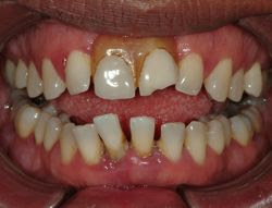 Sedation Dentist Photo Gallery Consequences Dental Anxiety ...