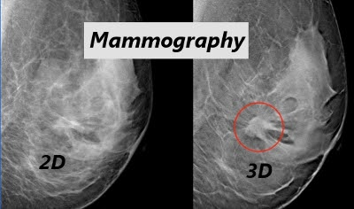 digital mammography and tomosynthesis for breast cancer diagnosis Friedewald sm, rafferty ea, rose sl, et al breast cancer screening using tomosynthesis in combination with digital mammography jama 2014311(24): 2499–2507 △ lei j, yang p, zhang l, wang y, yang k diagnostic accuracy of digital breast tomosynthesis versus digital mammography for benign.