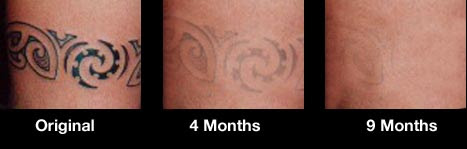 Tat B Gone Tattoo Removal System 1 Month Supply