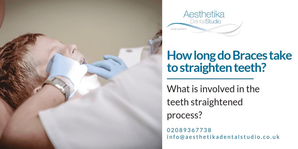 How long do braces take to straighten teeth?