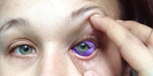 Sclera tattoo: Don't ink your eyeball. Just don't do it.