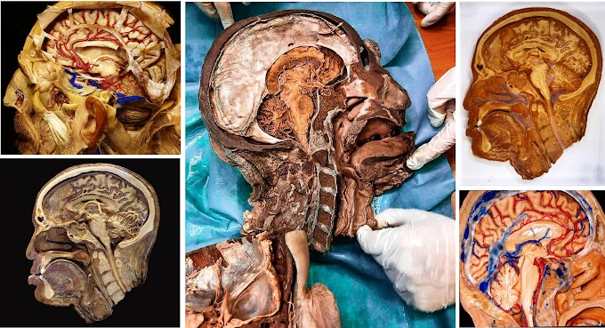 A Real Dissection of the Human brain