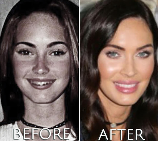 Megan Fox Plastic Surgery Before & After Photos