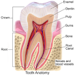 Toothache due to rotten teeth, bad teeth, tooth decay and more... - ONLINE DENTISTS