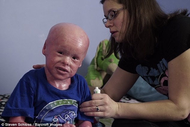 Suffering from the severest form of the disease, Evan is at constant risk of infection - requiring him to have two baths a day so his 33-year-old mother De De can scrub off the scales