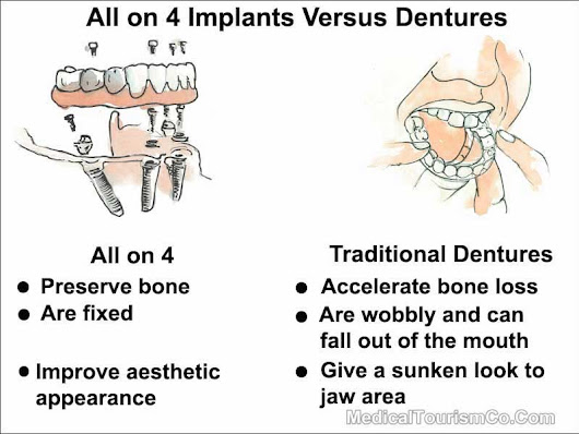 All on 4 Dental Implants Mexico | Cost | Med Tourism Co, LLC