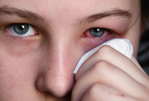 Slideshow: Pinkeye (Conjunctivitis) -- Causes, Symptoms, & Treatments