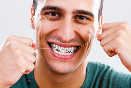 Flossing is Important for Everyone, but Especially While in Braces