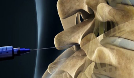 Make the way to your back pain relief with epidural lysis procedure