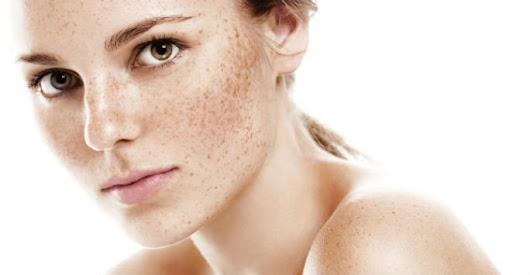 Common Causes of Freckles RI - South Kingstown RI - SeaMist MedSpa