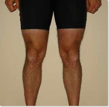 legs before and after running