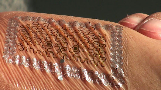 Graphene tattoos could monitor health