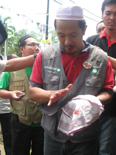 Salah seorang penyokong PAS tercedera dan berdarah terkena balingan batu oleh penyokong UMNO BN