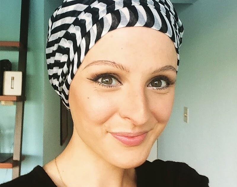 El tratamiento de la alopecia a las mujeres por los métodos públicos
