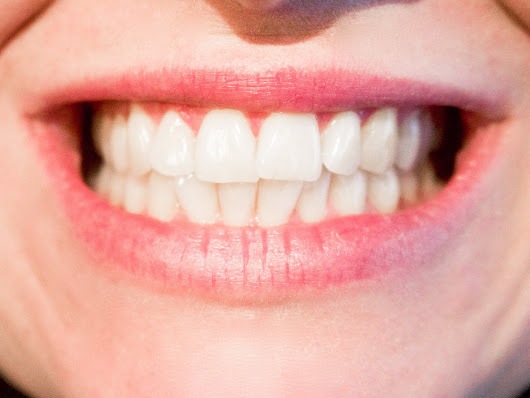 Teeth Shifting After Braces: Is it Normal?