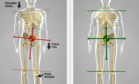 Lateral Pelvic Tilt – Diagnosis, Causes And Correction