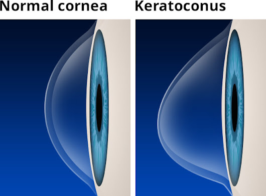9 Keratoconus Treatments + Causes and Symptoms