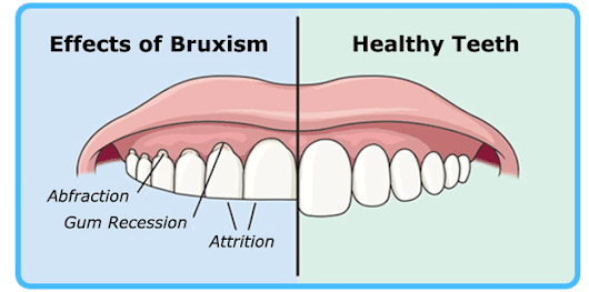 Bruxism: Are You Experiencing It?