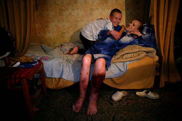 наркоманы гниют заживо шокирующие фото