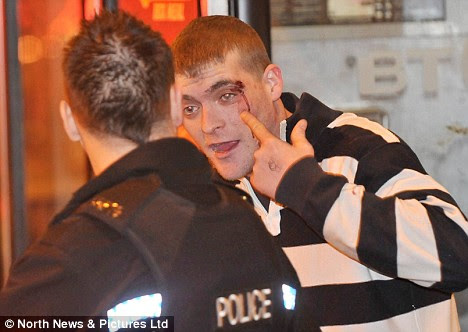 A male complains to a Police officer showing him his facial injuries