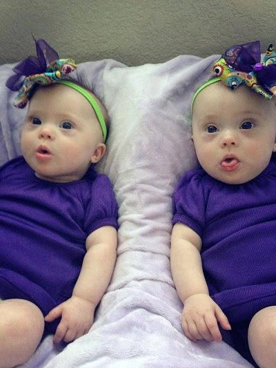 gêmeas com síndrome de down