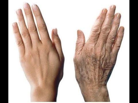 Saiba Agora uma Dica infalível para Acabar com as Manchas das Mãos e Cotovelos de Graça.