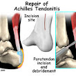Achilles tendon Injury – A Painful Experience
