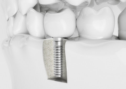 Need to know: dental implants
