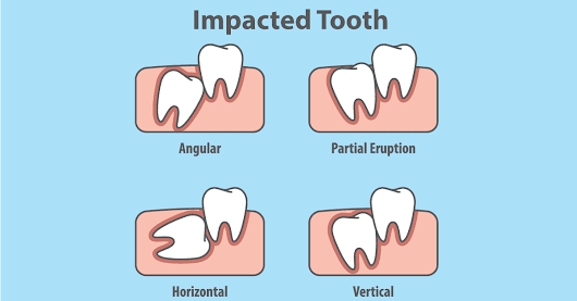 Do I need to remove an impacted wisdom tooth if it is not causing any problems?