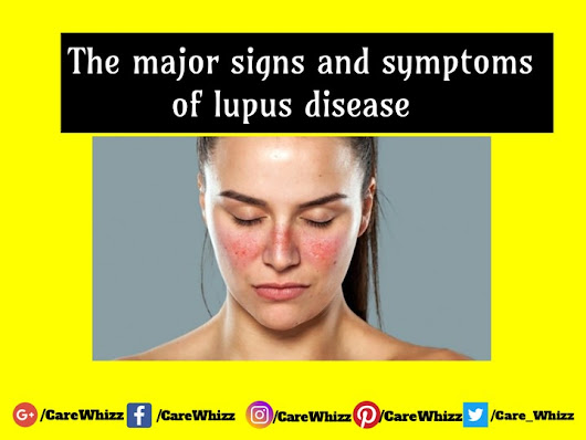 What Are The Signs And Symptoms Of Lupus? - Health - Nigeria