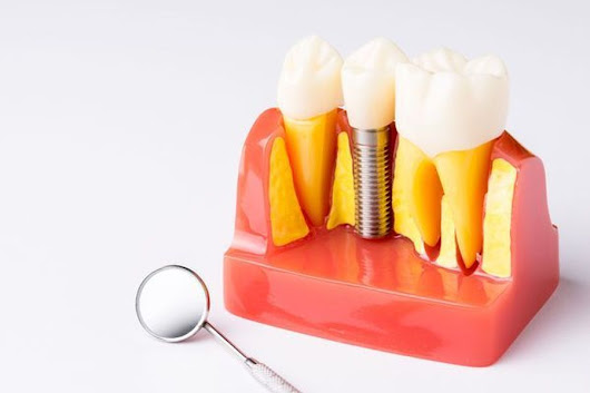 Dental Implants - Gurnee, IL - Lake County, IL - Delany Dental Care
