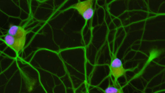 Research reveals potential therapeutic target for amyotrophic lateral sclerosis