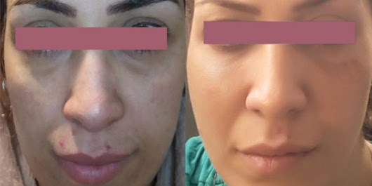 eye bags removal vary depending on what's causing bags under the eyes