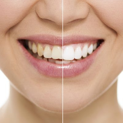 Cosmetic Dentistry | Beaverton Dentist