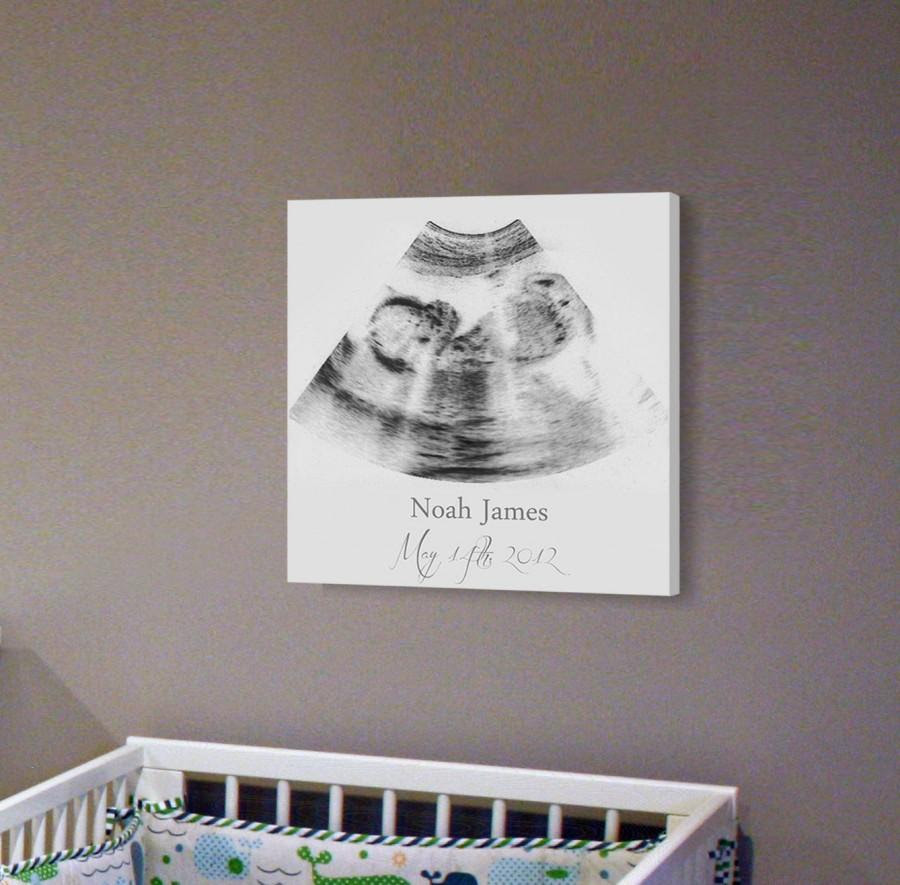 Sonogram Print Nursery Wall Art A Personalized Ultrasound Canvas