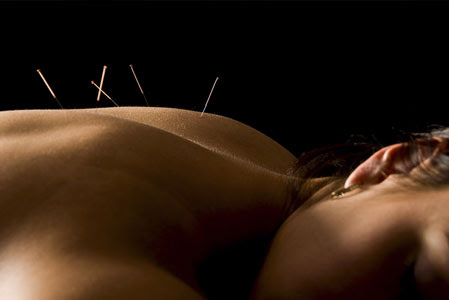 Women's disease treatment at Philadelphia Acupuncture Clinic