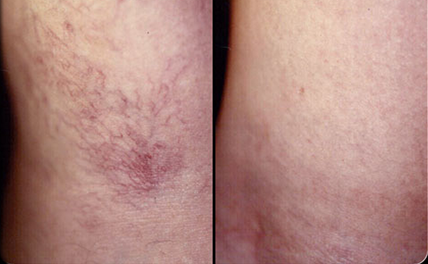 Laser Light assisted Superficial Spider veins treatment for men and women in Westbury, Newyork.