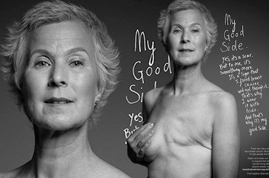 Brave breast cancer survivor proudly shows off mastectomy scar for charity campaign