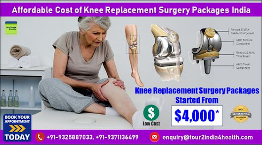 Affordable Cost of Knee Replacement Surgery Packages India by KanchanMadan Blog entry