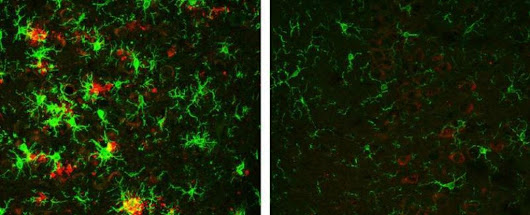 Alzheimer's Has Been Reversed in Mice With This Single Enzyme Treatment