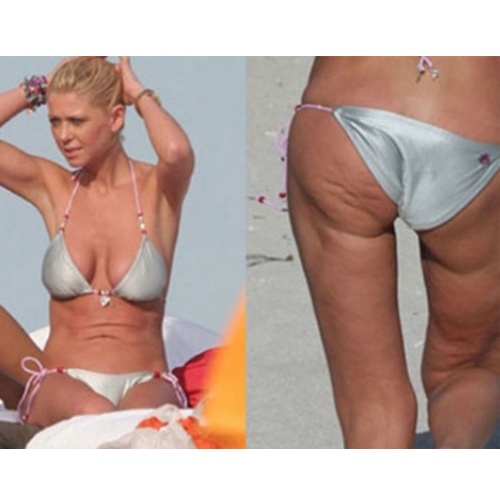 40 Celebrities with cellulite | Pictures | - Cellulite Removal Centro