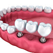 How Do Dental Implants Work? | Summit Dental Care
