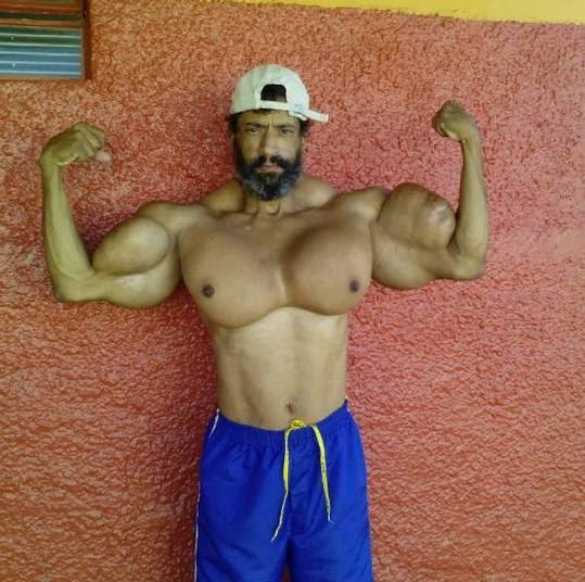 Valdir Segato é brasileiro, bodybuilder e operário de obra que mora em Ribeirão Preto e foi apelidado de 'He-Man', graças aos seus recém-adquiridos músculos. No entanto, não foi só com muita malhação que ele conseguiu isso tudo: Valdir aplica diariamente injeções de óleo que são potencialmente letais!