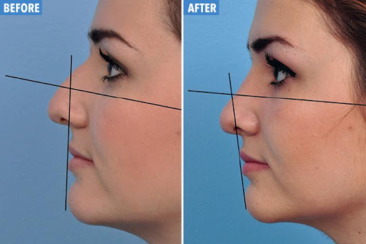 Having a nose job could give you a free lip plump, says experts