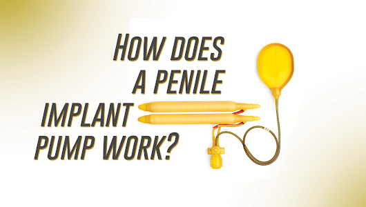 How does a penile implant pump work? | St Pete Urology