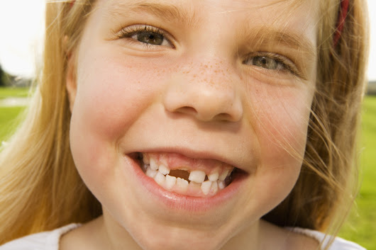 What's The Going Rate For a Lost Tooth Nowadays?