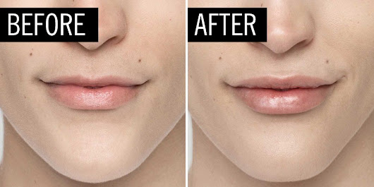 8 Rumors You've Heard About Lip Injections That Aren't True