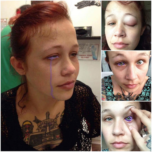 Canadian woman warns of eye tattoos after botched one leaves her partially blind
